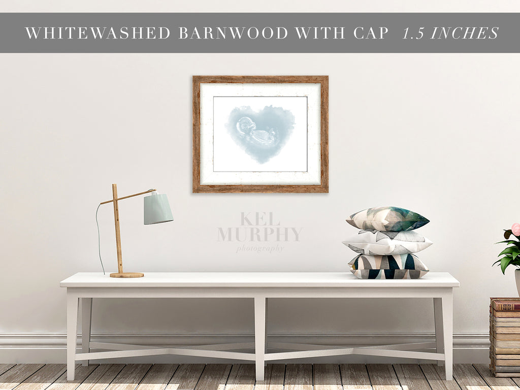 Whitewashed Barnwood Frames for ultrasound and embryo watercolor art living room wall decor