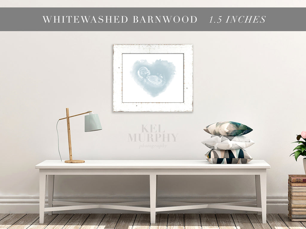 Whitewashed Barnwood Frames for ultrasound and embryo watercolor art living room decor