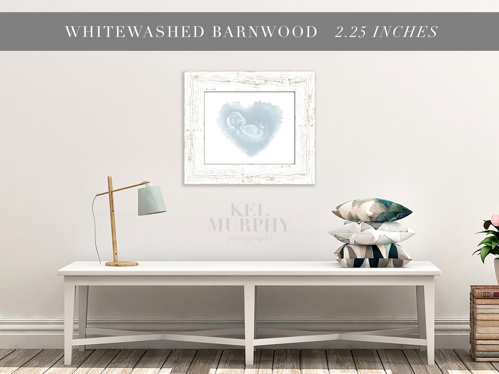 Whitewashed Barnwood Frames for ultrasound and embryo watercolor art home decor