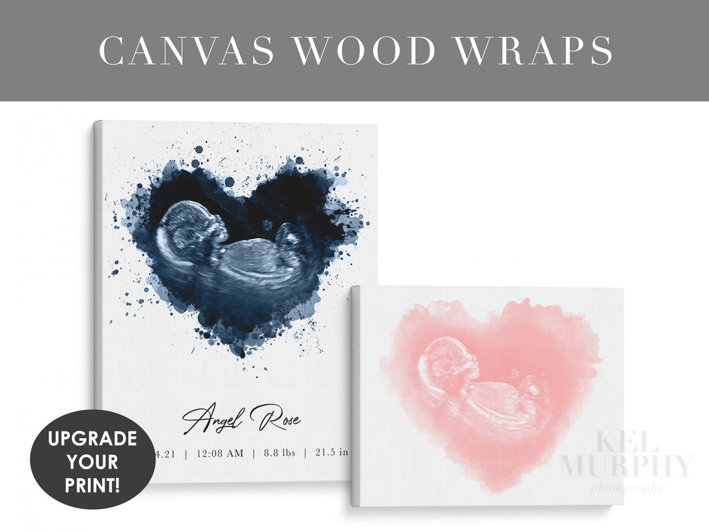 Custom Canvas Wood Wraps upgrade your personalized ultrasound and embryo watercolor art print