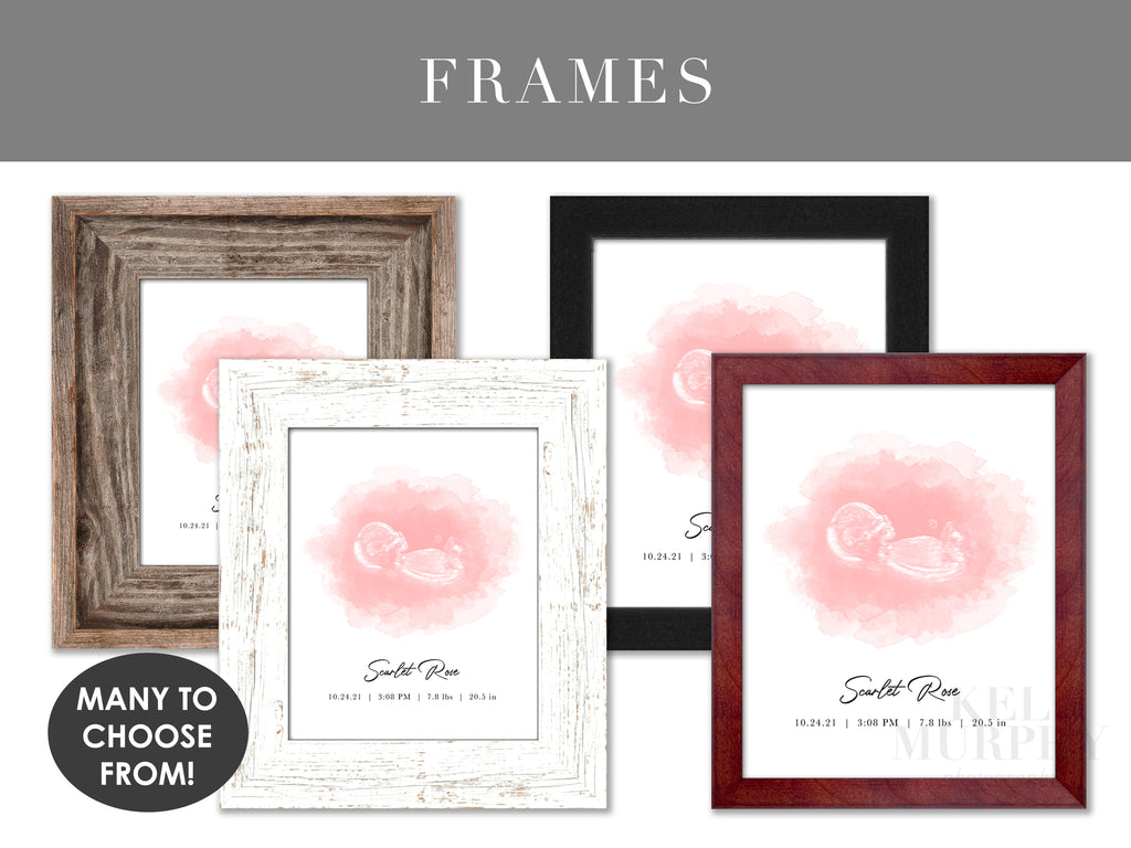 Custom Frames upgrade your personalized ultrasound and embryo watercolor art print