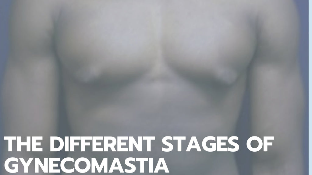 The Different Stages of Gynecomastia