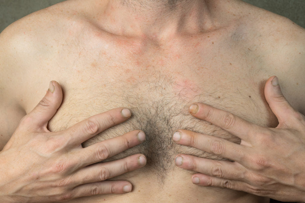Gynecomastia moobs comprehensive guide