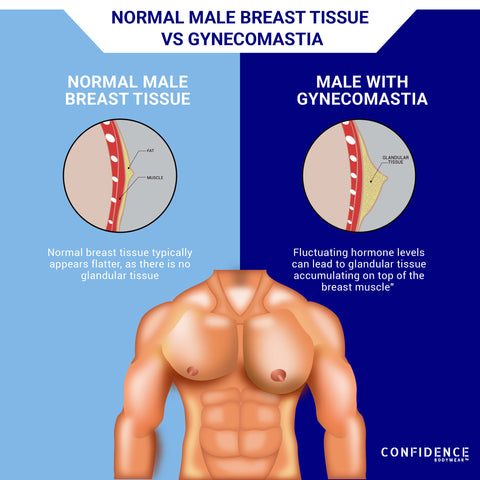 Gynecomastia Man Boobs Moobs Confidence Bodywear