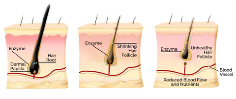 illustration of the stages of hair loss-hair follicle-hair root-www.rdalchemy.com