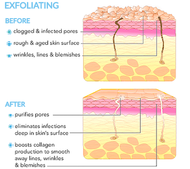 diagram-of-exfoliation-on-skin-before-and-after-www.rdalchmy.com