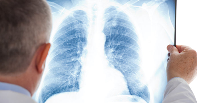 Lung cancer isn't just for Smokers anymore.