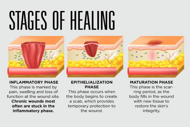 Stages of Healing