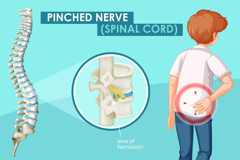 Spinal Cord Pinched nerve and its affect on anxiety