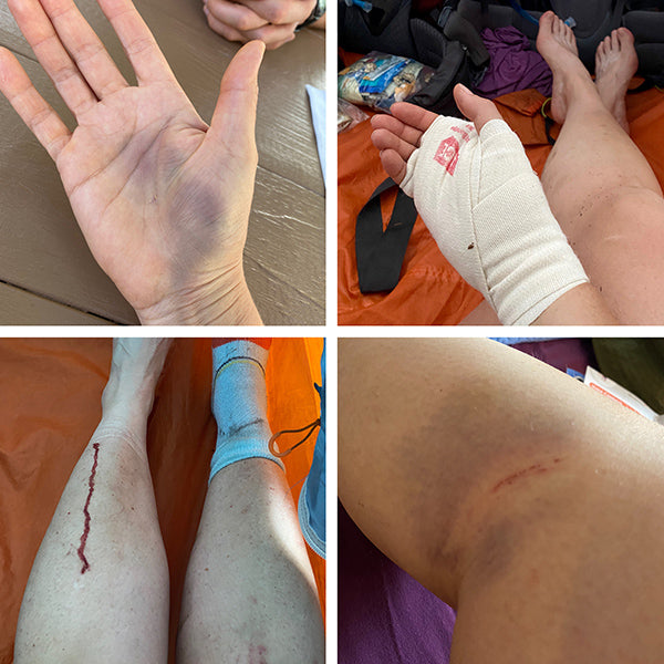 Catherine Grisez hiking injuries on the Appalachian Trail
