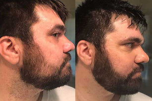 Before And After picture of a man's beard showing the effect of using the beard growth kit. In the Before picture man has a patchy and thin Beard. In the After picture you can see the man no longer has a patchy beard and his beard looks thicker.