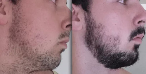 Before And After picture of a man's beard showing the effect of using the beard growth kit. In the Before section man has very minimal facial hair. In the After section man has more facial hair and a thicker beard.