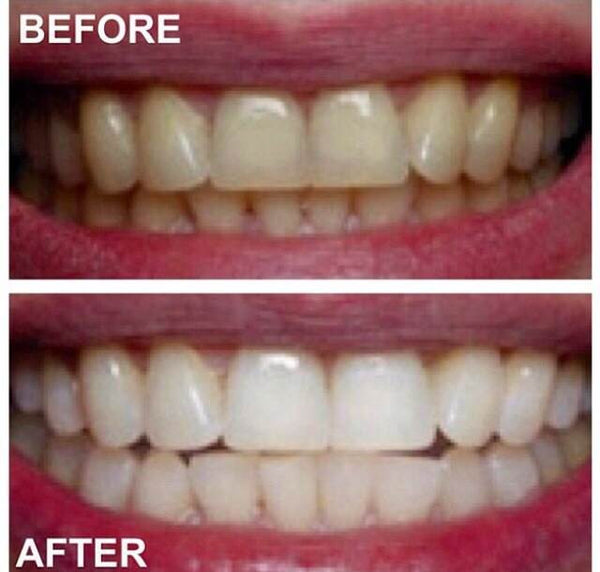 30 Minutes In-Office Teeth Whitening For $75.00