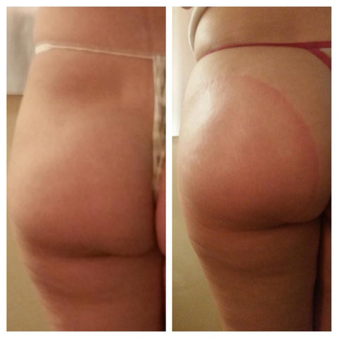 Vacuum Therapy – Cellulite Reduction & Butt Enhancement
