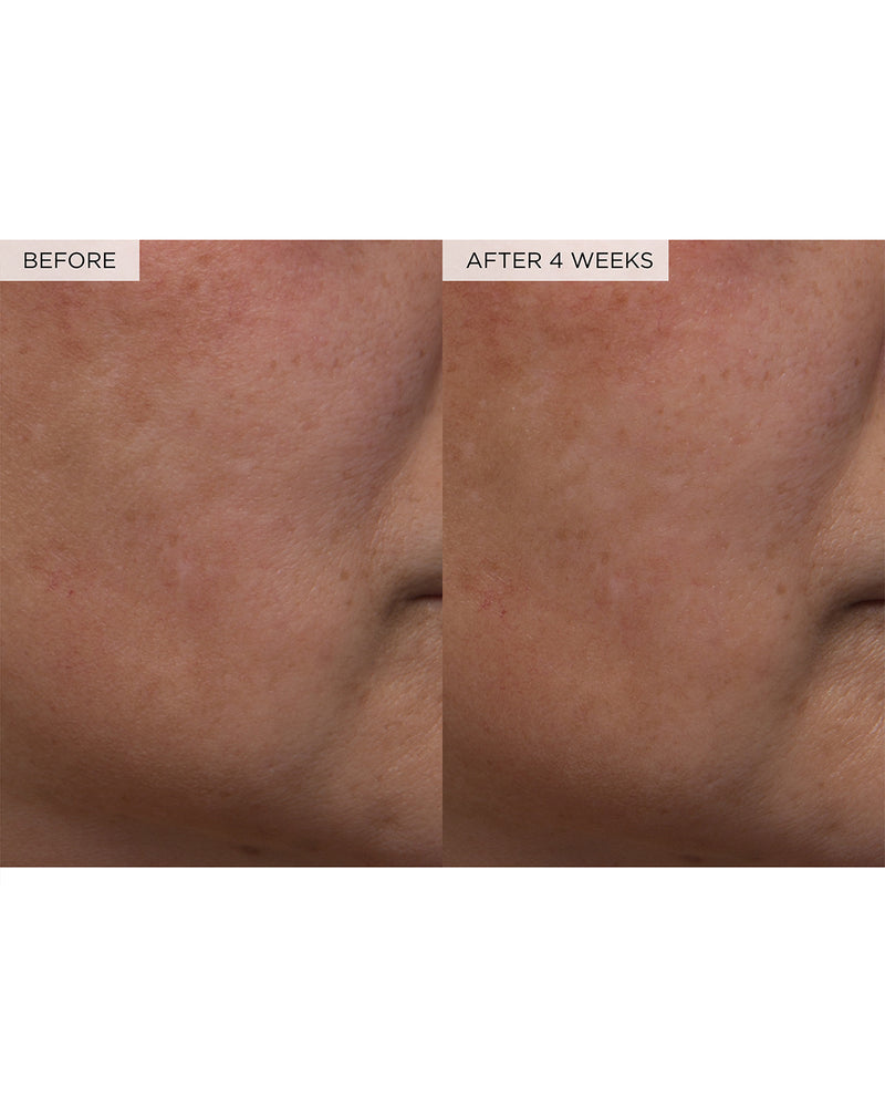 watermelon glow PHA + BHA pore-tight toner claims before and after four weeks of use