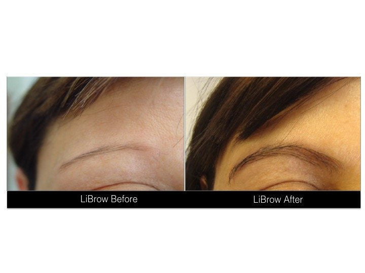 LiBrow Eyebrow Serum - XL Original (Full Size)