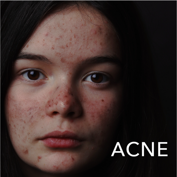 Skin Conditions: Acne