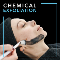 Chemical Exfoliation Techniques