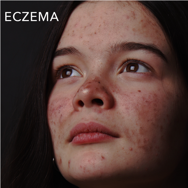Skin Conditions: Eczema and Psoriasis
