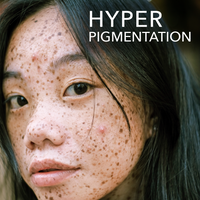 Skin Conditions: Hyperpigmentation