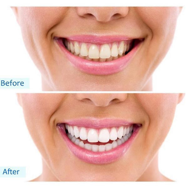 Uv Light Teeth Whitening Kit Reviews