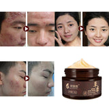 Facial Face Cream Daily Skin Care Makeup Anti-Pimple Acne Herbal Cream Local Cleansing Treament Acne Beauty Whitening Cream | akolzol