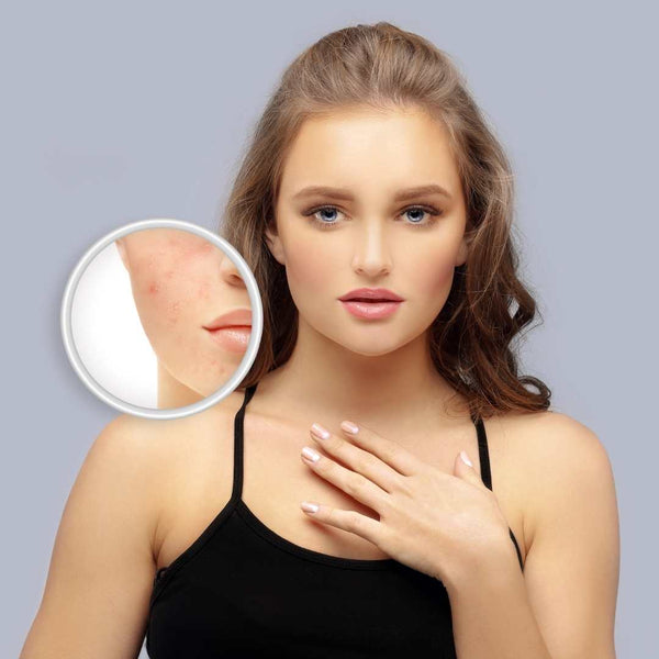 cover up scars with makeup