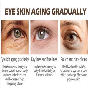 Magic Eye Cream【28 seconds to remove eye bags / dark circles/eye wrinkles】