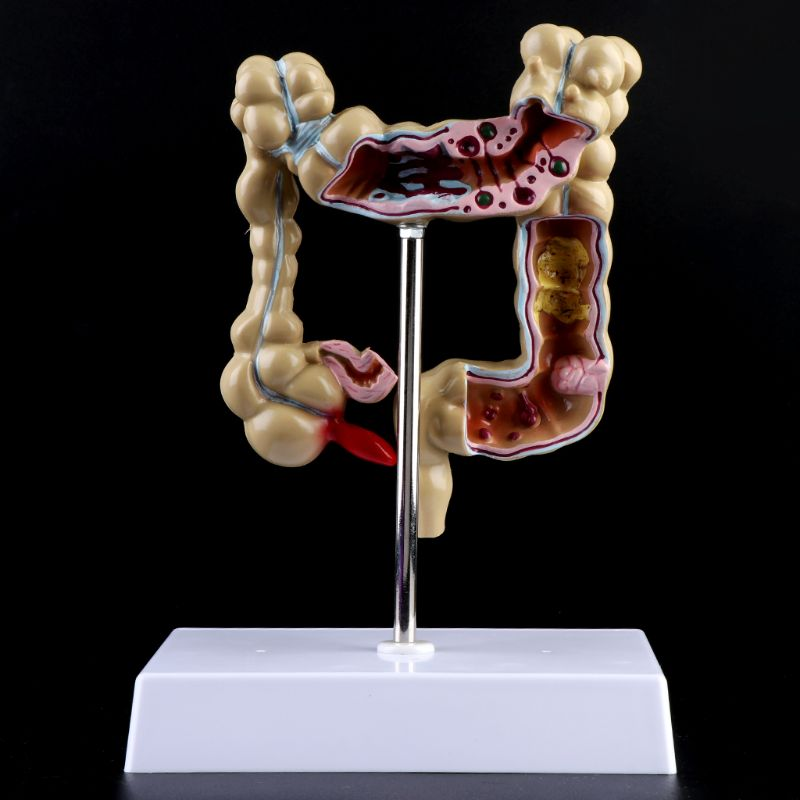 Human Colorectal Lesion Model Pathological Anatomy