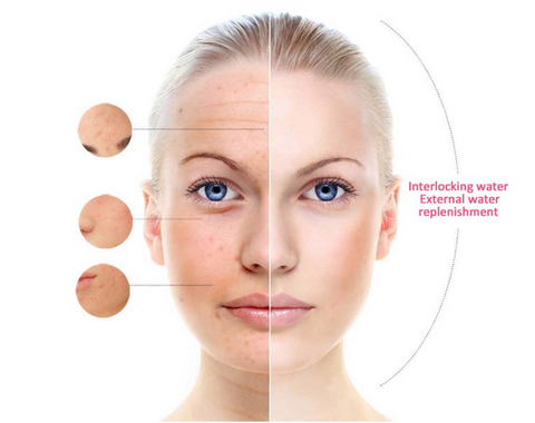 before-after-effects-facial-steamer