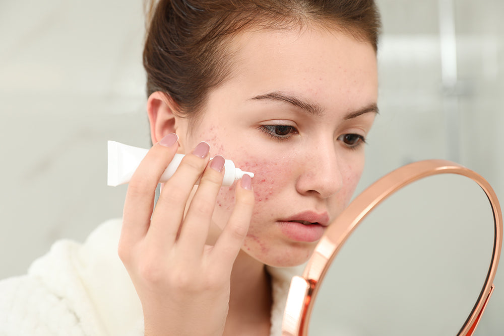 treat acne at home