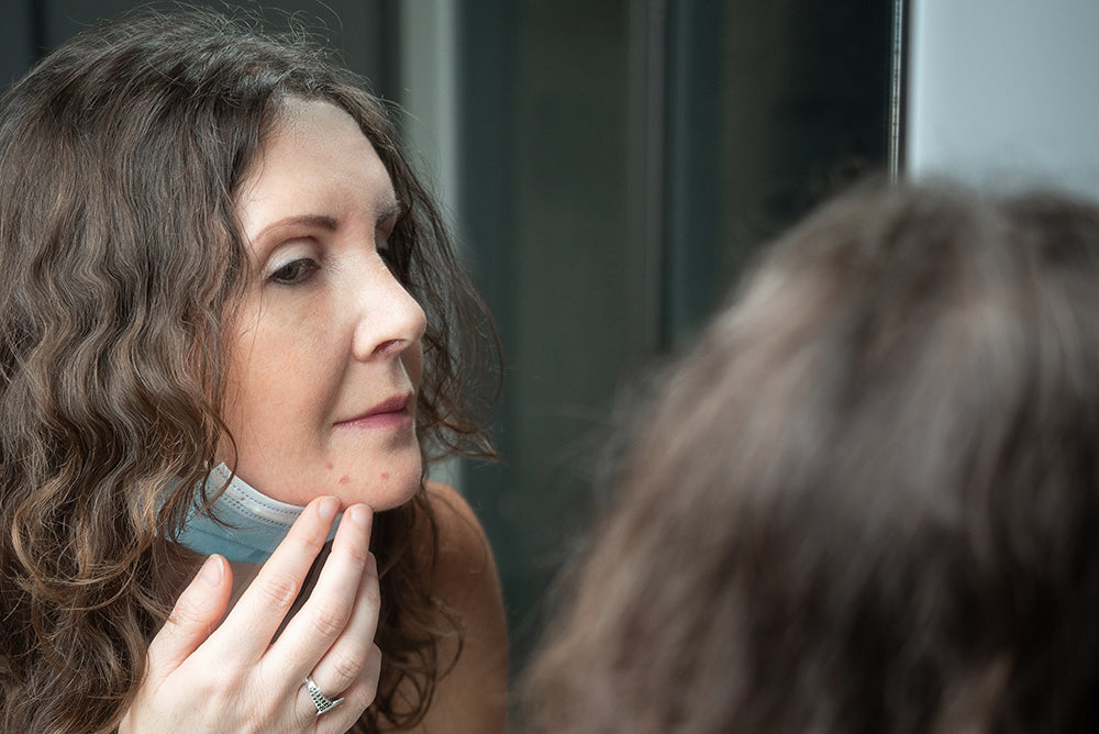 Causes of Adult Acne in women face