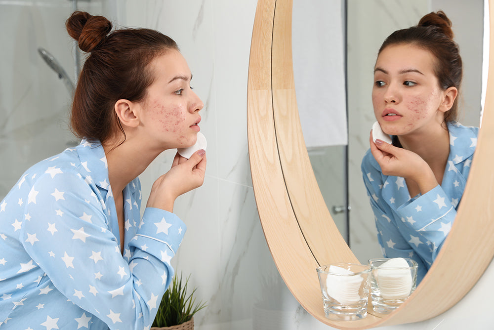 why teens have acne