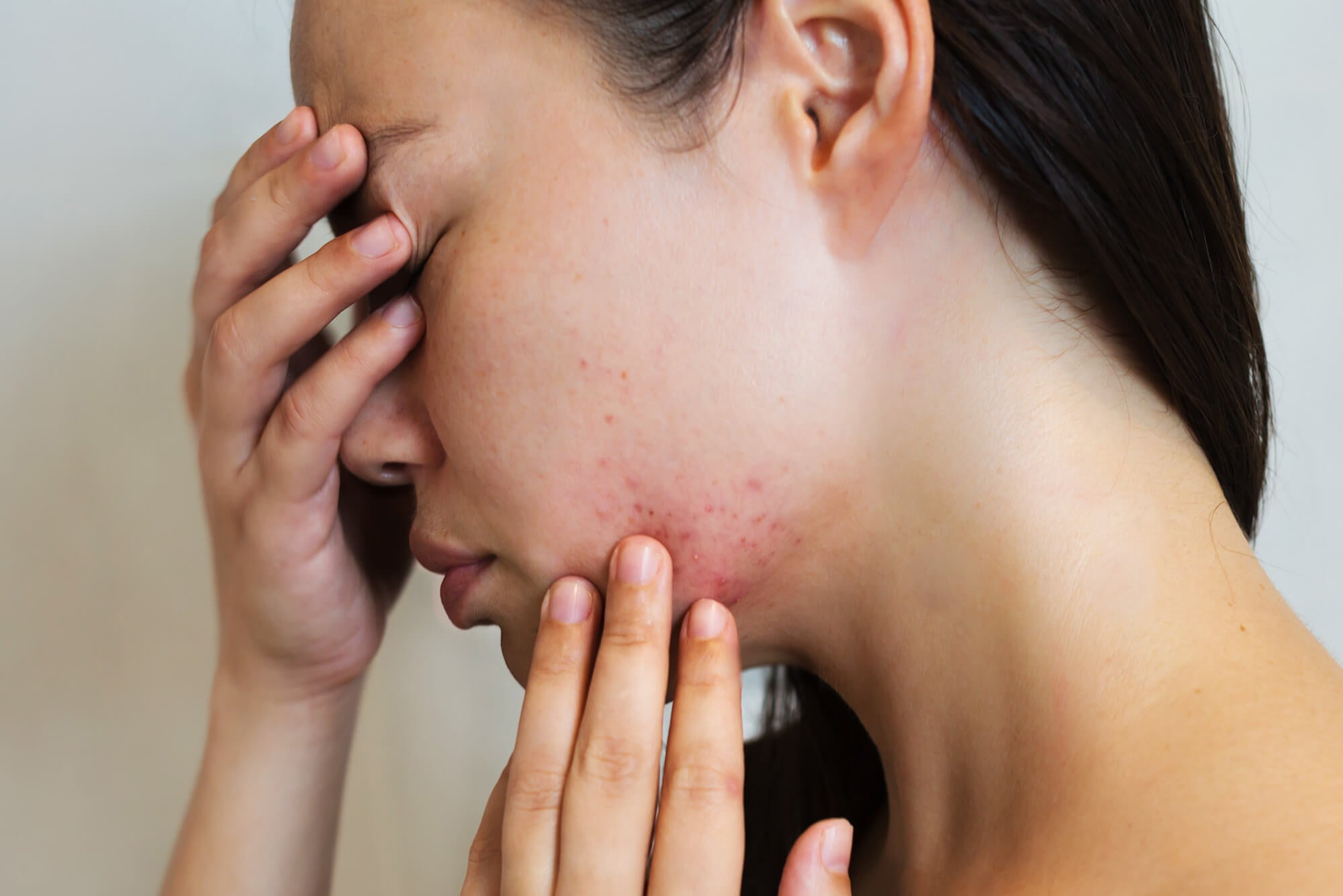 best acne spot treatments at home