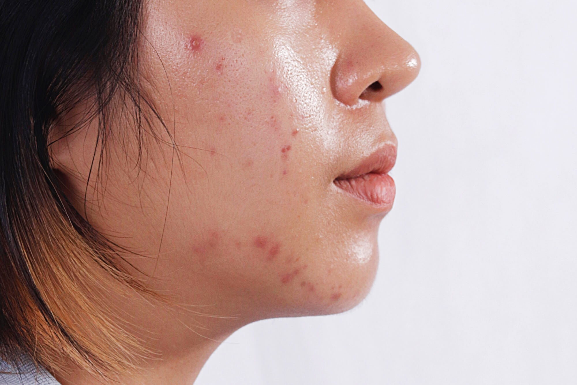 how to treat acne with oily skin