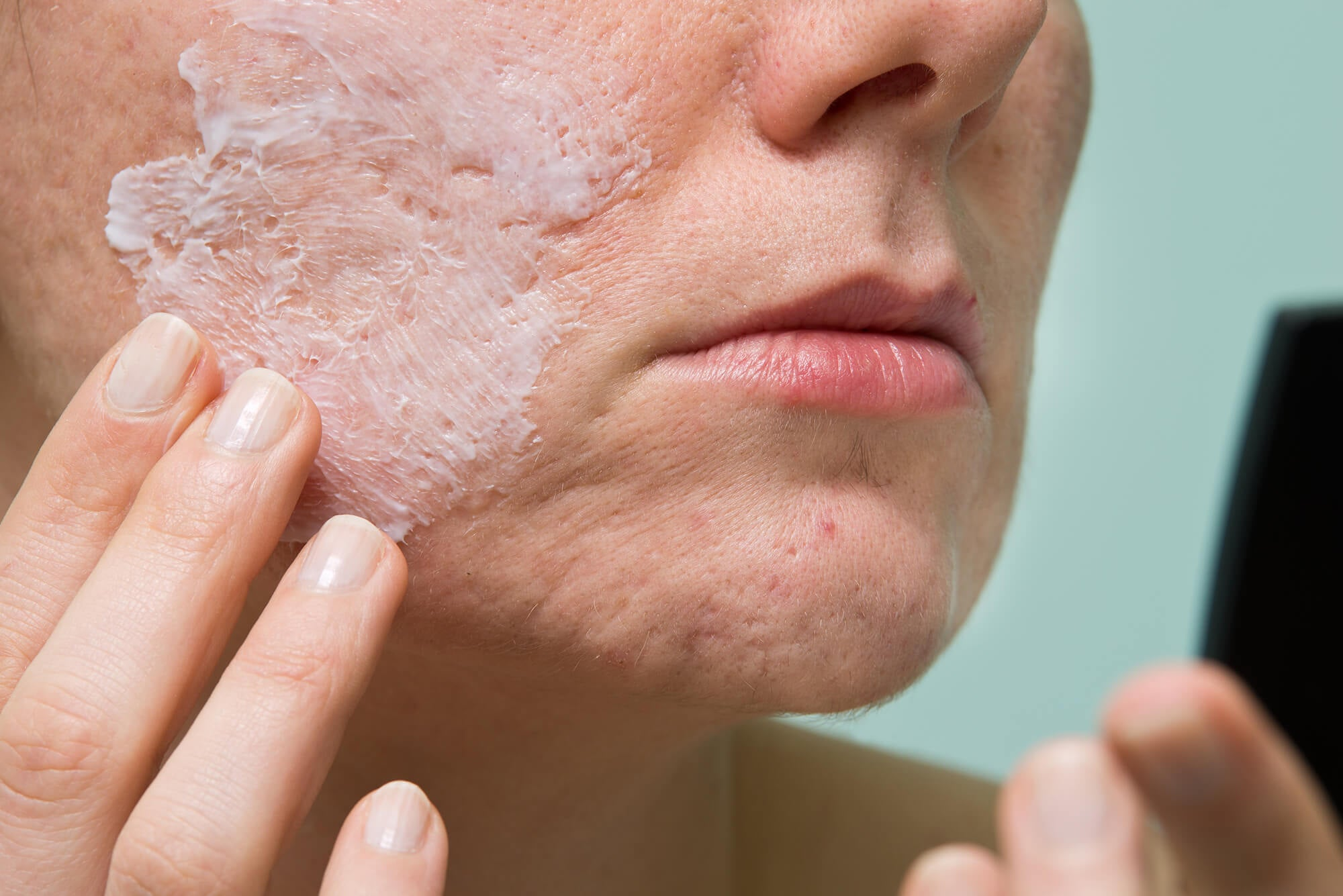use acne remedies all over your skin