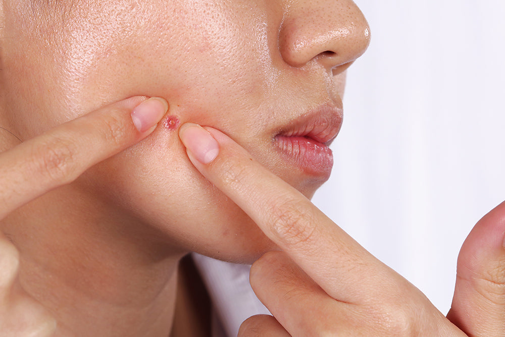 what acne causes scars