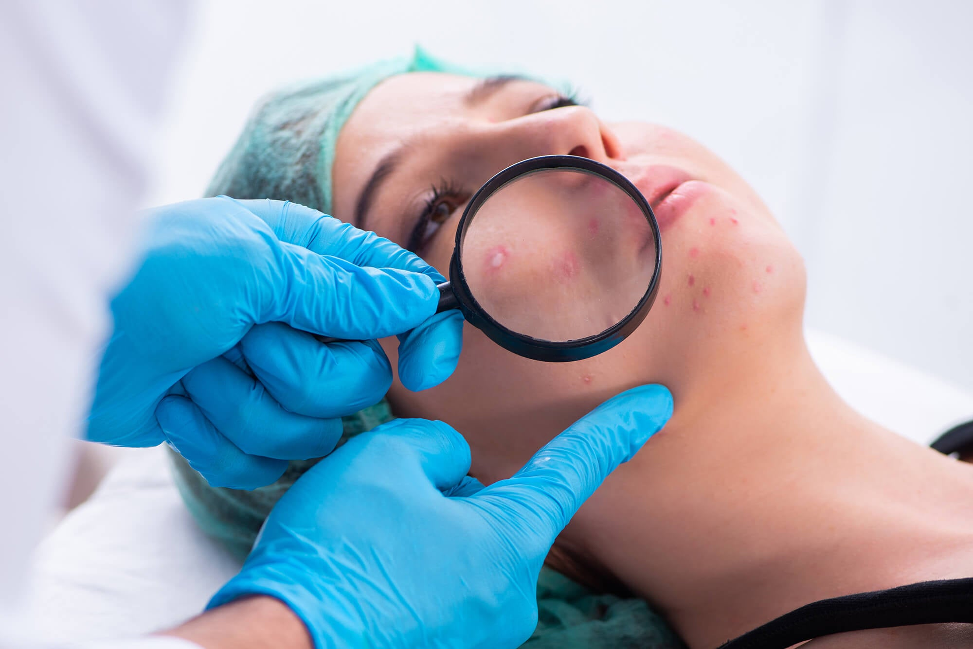 what does a dermatologist do for acne