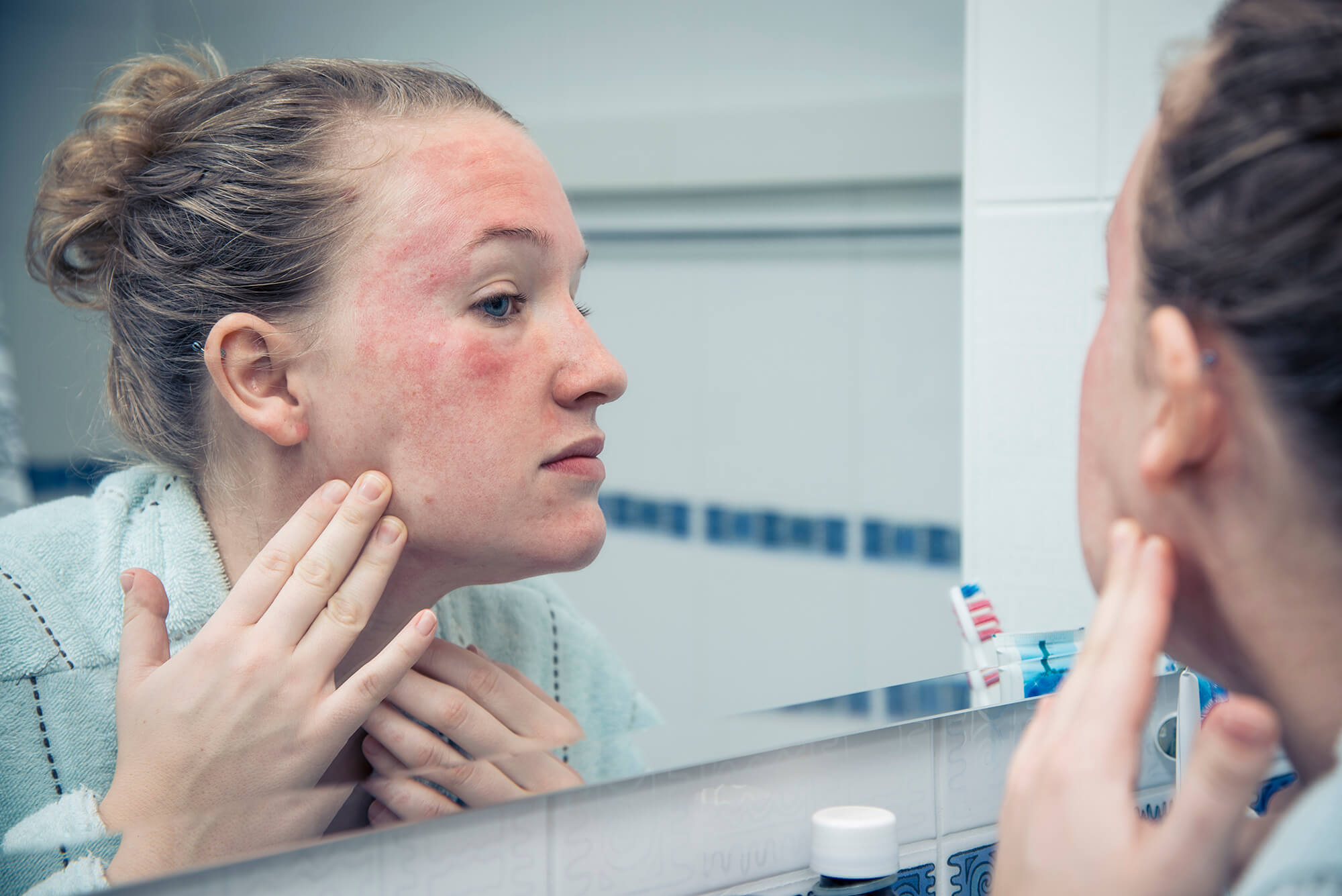 when to see a dermatologist for acne