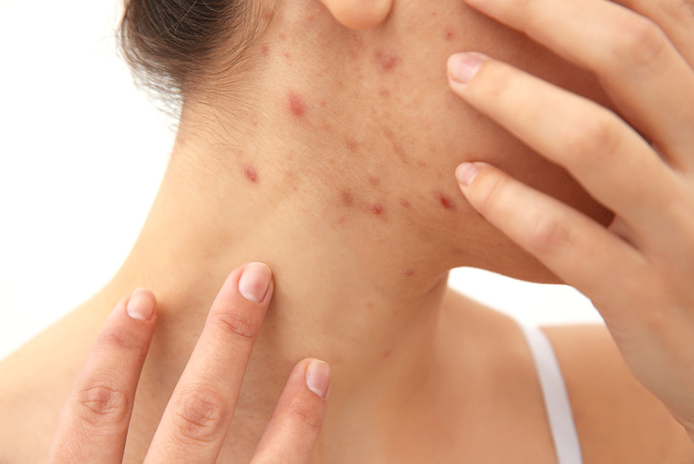 why suddenly getting acne on face and neck