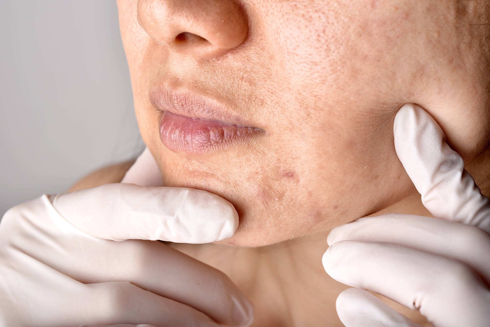 сan a dermatologist help with acne