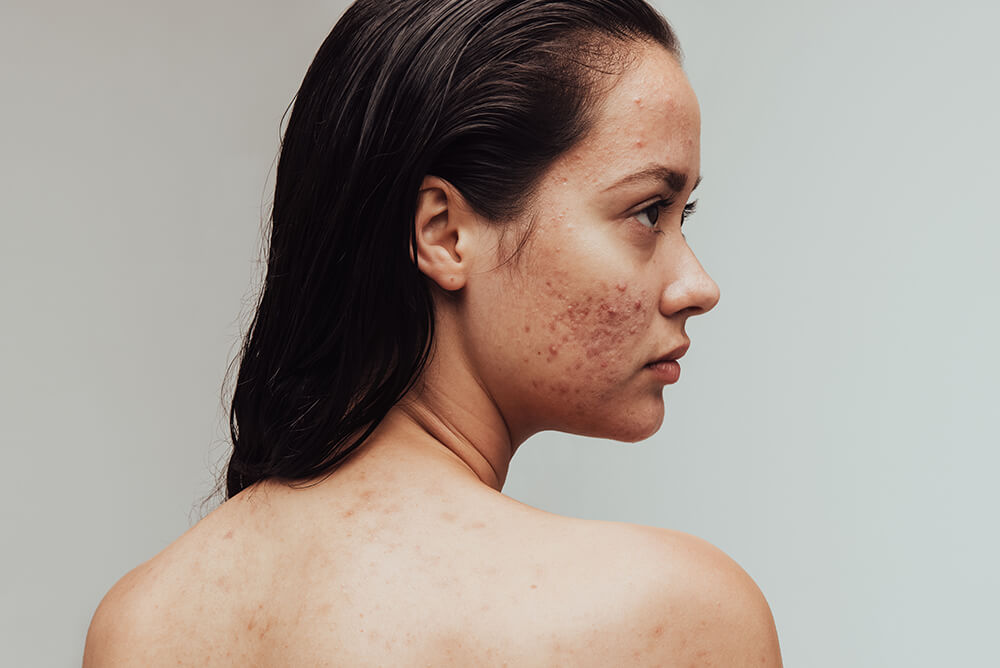 how to use tea tree oil for acne scars