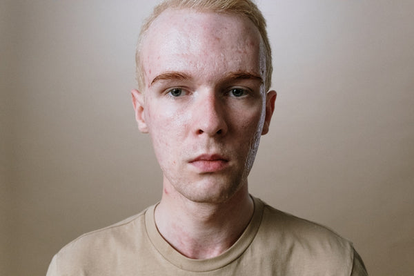 man suffering from acne