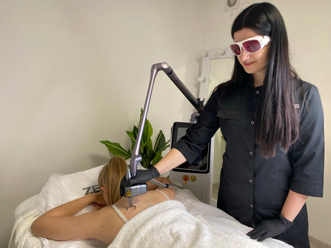 Z Fractional lasers