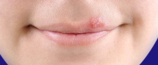 Stages Of A Cold Sore (Stage 4)