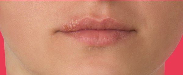 Stages Of A Cold Sore (Stage 5)