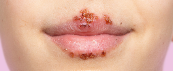 Stages Of A Cold Sore (Stage 6)
