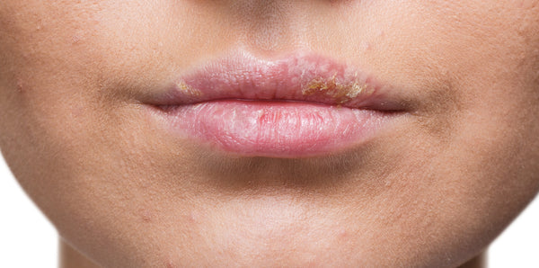 Stages Of A Cold Sore (Stage 7)