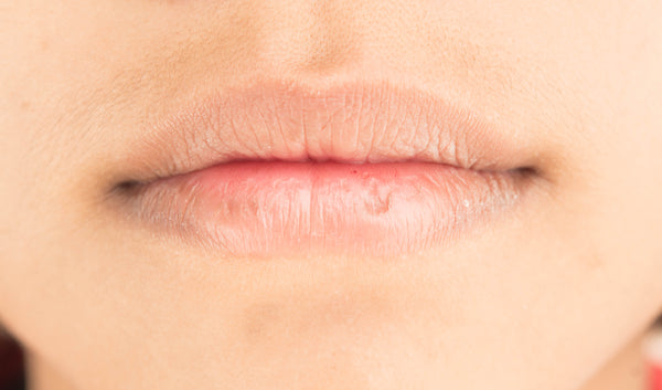 Stages Of A Cold Sore (Stage 8)