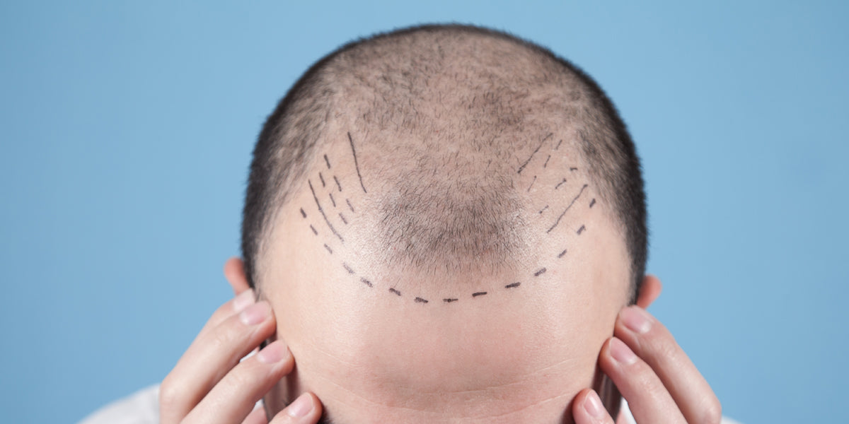 Balding man with pen marks indicating previous hairline